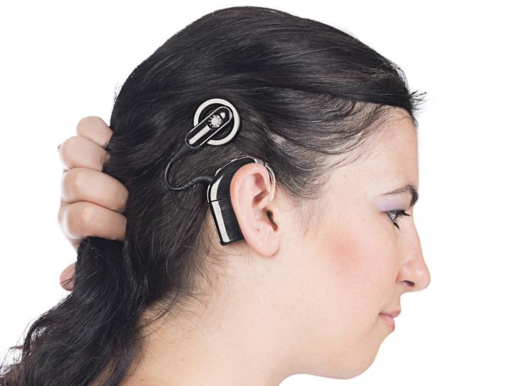 Der globale Cochlea-Implantatmarkt lag 2018 bei 1.510,9 Mio. US-Dollar und wird im Prognosezeitraum 2019 – 2027 voraussichtlich um 11,9 % wachsen.