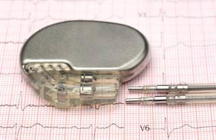 Künstlicher Herzschrittmachermarkt 2020- Globale Branchenanalyse, nach Schlüsselakteuren, Segmentierung, Trends und Prognosen bis 2026